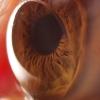 on my eye