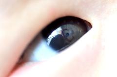 瞳にピース!!